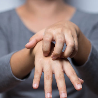 علائم، تشخیص و درمان اگزما