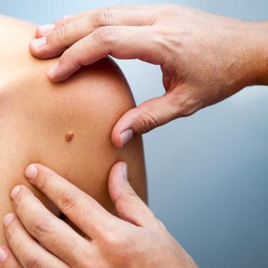 زگیل پوستی - شناخت و درمان انواع زگیل های پوستی