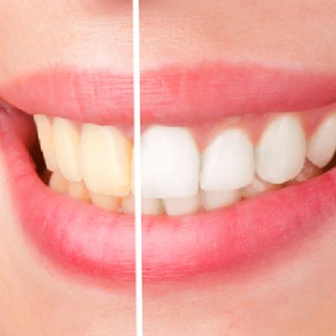 تاثیر سیگار بر بهداشت دهان و دندان