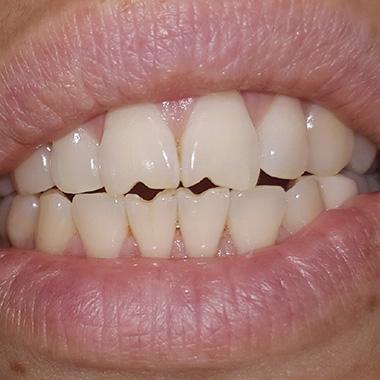 دندان قروچه در خواب - علت فشار دادن دندان ها در خواب چیست