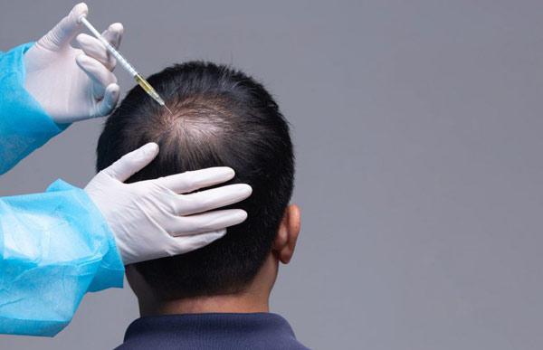 PRP برای درمان ریزش مو