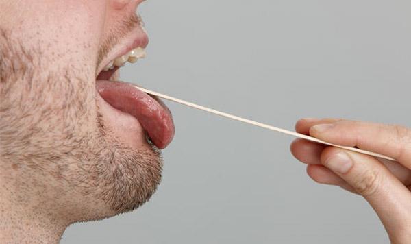 علائم سرطان زبان