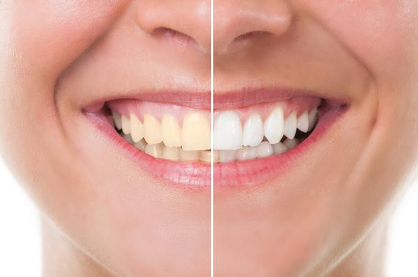 سفید کننده دندان خانگی