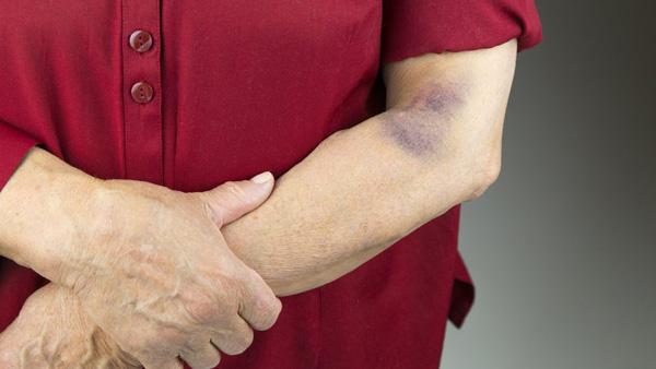 کبودی و خونریزی در اثر مصرف دارو