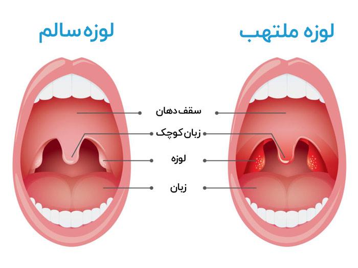 عفونت لوزه چیست