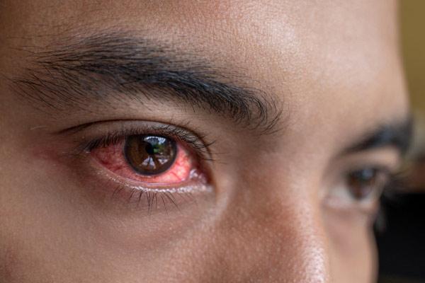 نشانههای تشخیص غلظت خون بالا