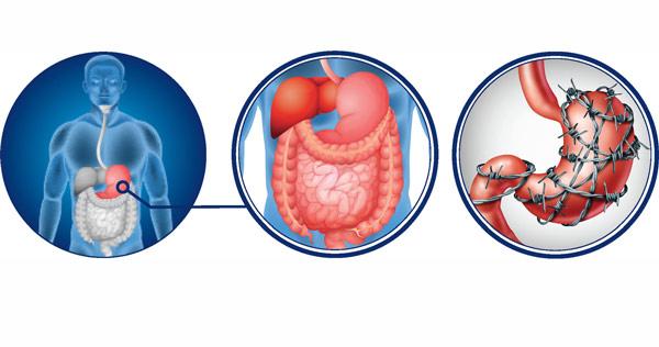 باکتری عامل زخم معده چیست