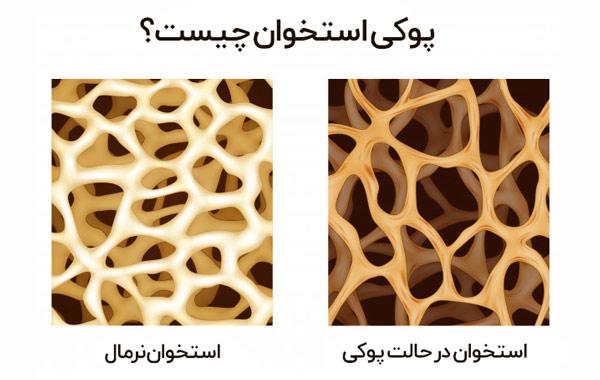 بیماری پوکی استخوان