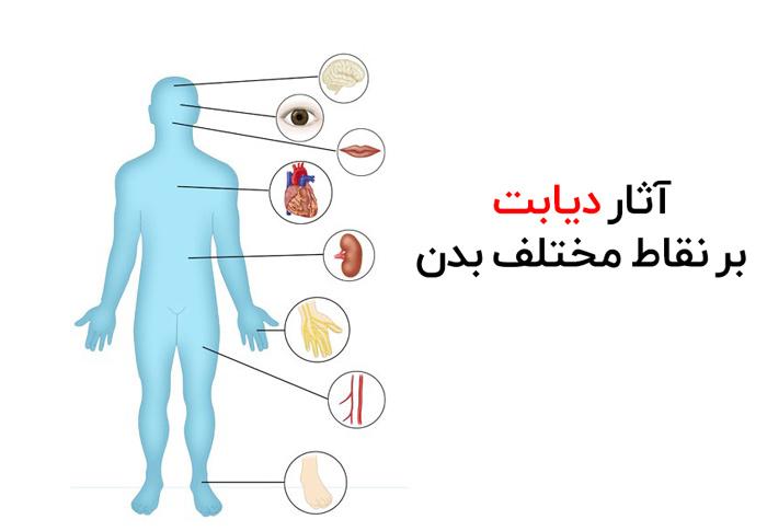 عوارض دیابت نوع ۱
