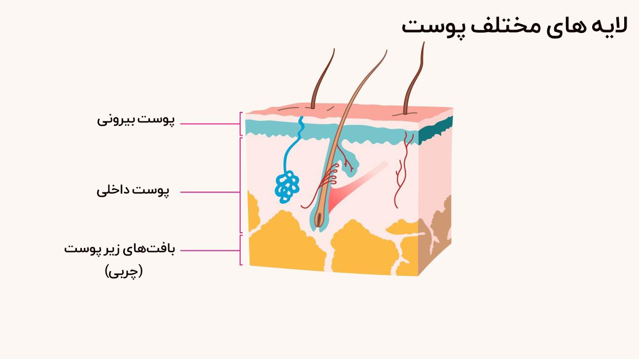 چه چیزی باعث سرطان پوست میشود
