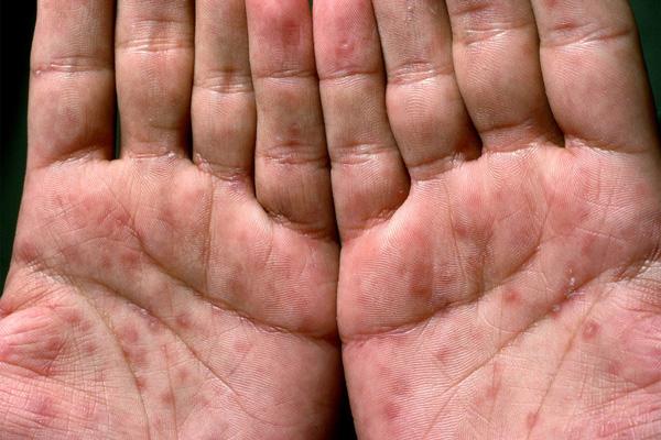علایم پوستی