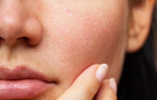 وازلین برای التهاب پوست