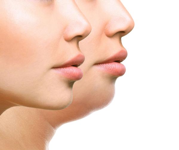 چگونه با ورزش صورت خود را لاغر کنیم