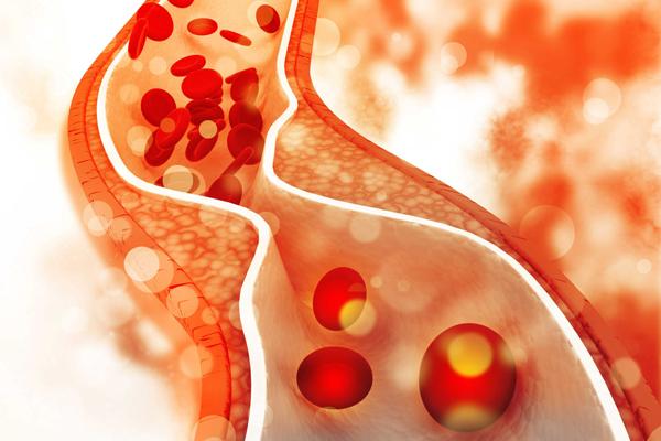 کلسترول خوب خون چیست