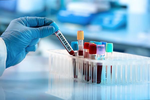 التهاب بدن چگونه تشخیص داده میشود