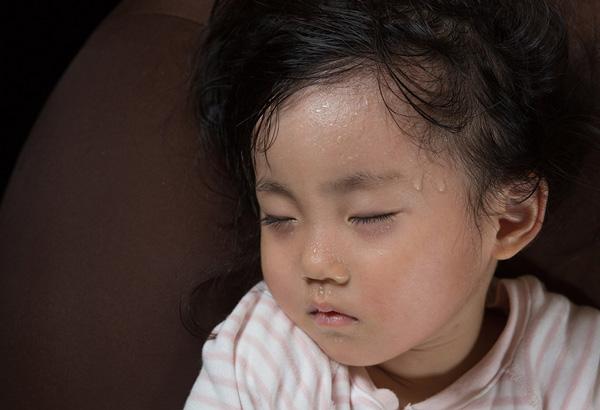 انواع گرمازدگی در کودکان
